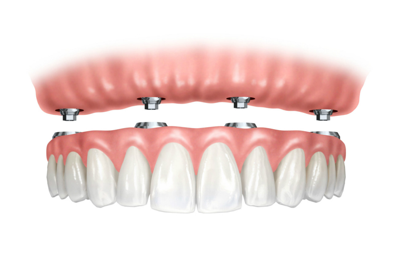 3a2fa3a6958a Prótese dentaria fixa em implantes dentários ~ Dentopolis
