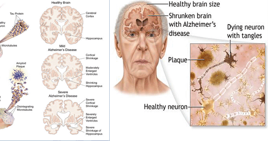 effects of alzheimers disease essay