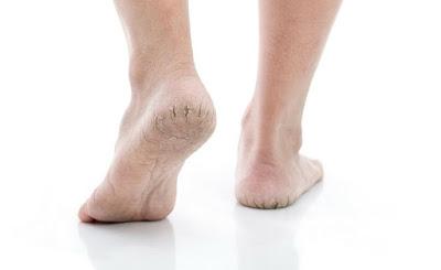 علاج تشققات القدمين فى المنزل بوصفات طبيعية وأسباب تشقق القدمين