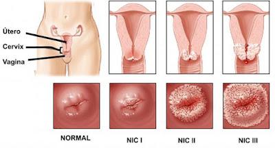 El Virus del Papiloma Humano (VPH) y su relación con el cáncer cervical