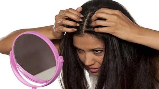 Saç Gribi  Neden Olur ve Çözümü Nedir