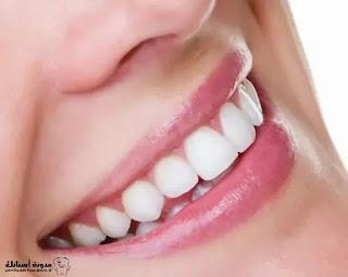 تبييض الأسنان في المنزل،معلومات عامة.