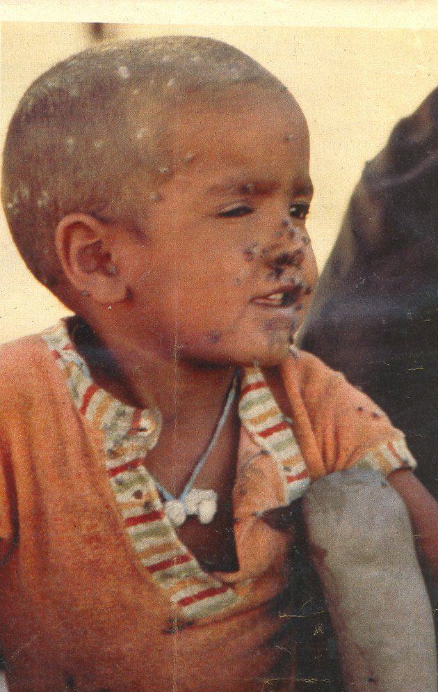 📷 REPORTAJE | El genocidio del que nadie habla: la masacre de Um Draiga.