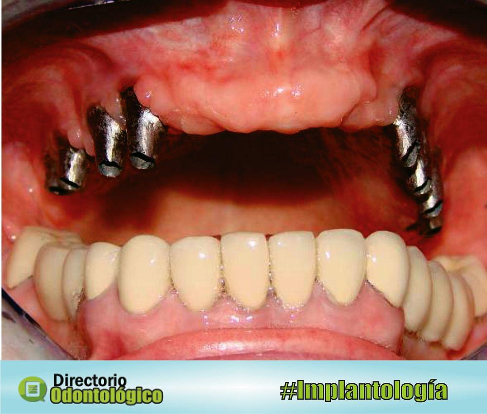 implantes-dentales