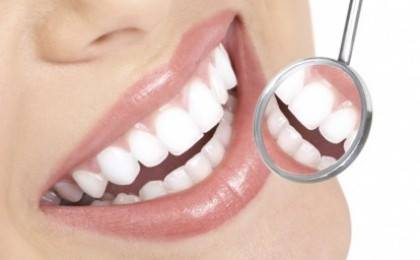 Dental White Strips - Albesti Dintii