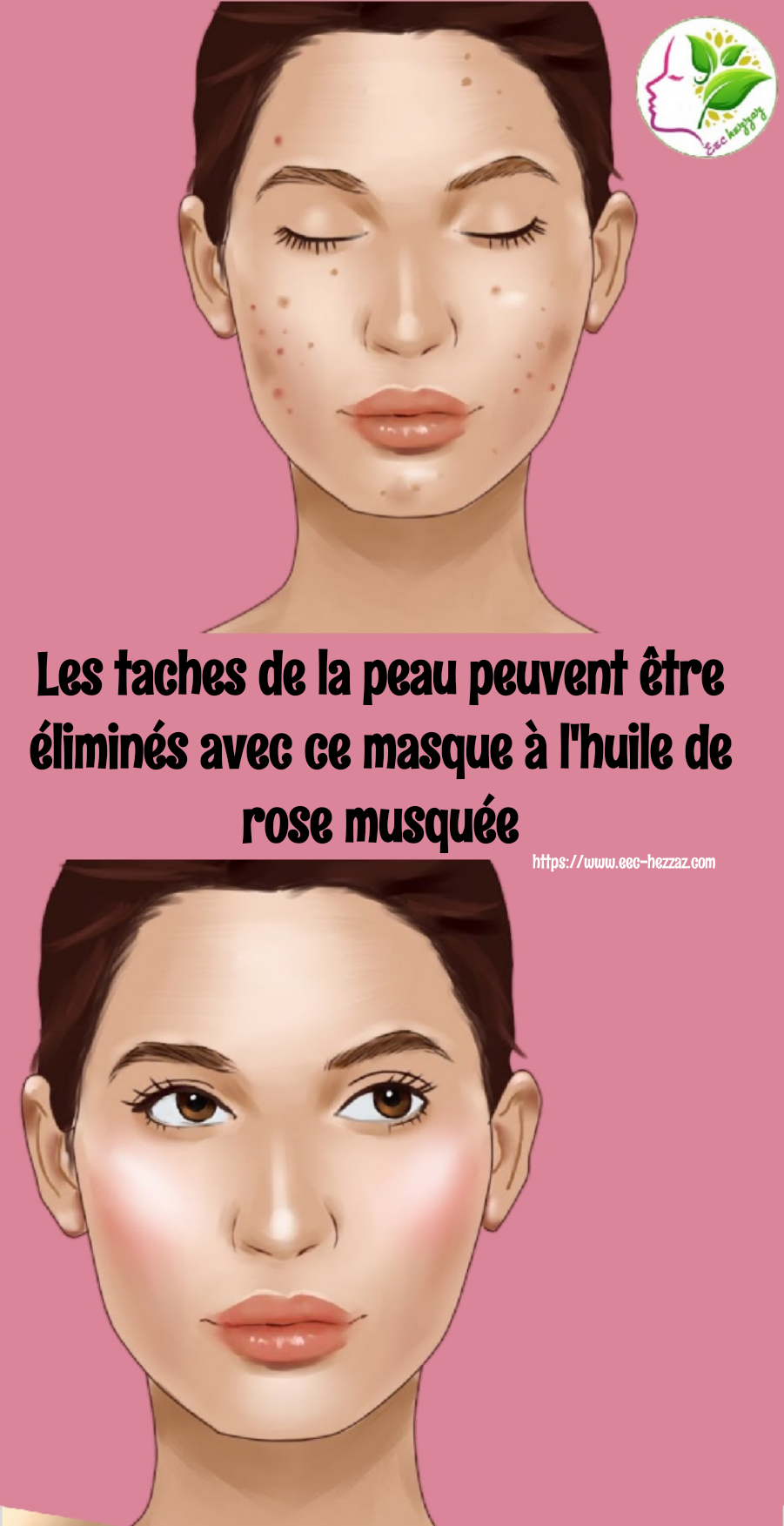 Les taches de la peau peuvent être éliminés avec ce masque à l'huile de rose musquée