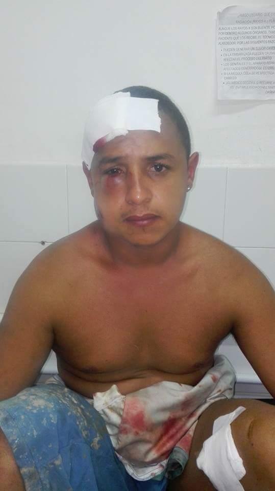 Los habitantes de Segovia son agredidos por la fuerza pública en el marco del paro minero
