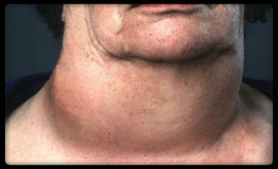 The thyroid gland is a butterfly shaped gland which is there in the front of the neck.