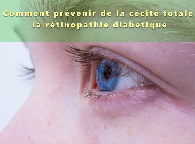 Comment prévenir de la cécité totale : la rétinopathie diabétique