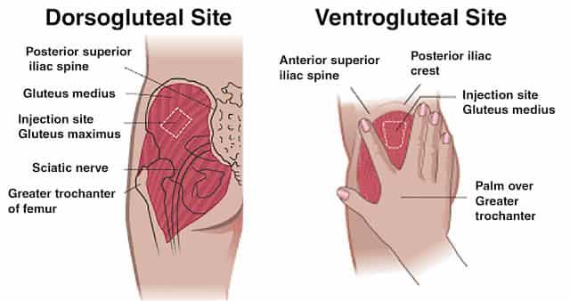 ventrogluteal