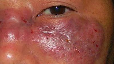 Mucormycosis, penampakan orang yang terinfeksi jamur hitam india