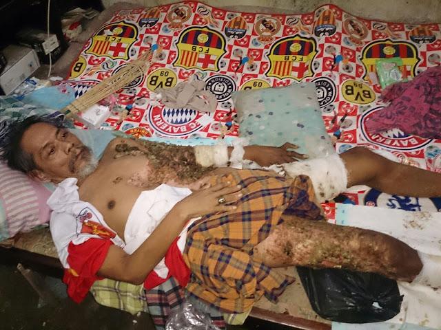 Anggota DPRD Gerindra Jabar Bantu Warga Cirebon Luka Bakar Kecelakaan Kerja di Bekasi