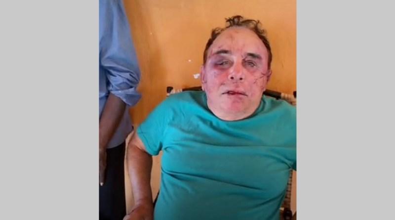 Vídeo! Candidato a prefeito de Santa Terezinha Arimateia é brutalmente agredido por bandidos na manhã deste domingo (08). Família é feita refém