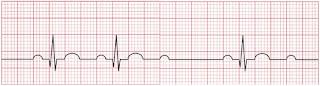 An ECG of second-degree atrioventricular block.