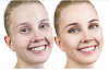 Get Rid of Pimples and Acne Overnight Naturally