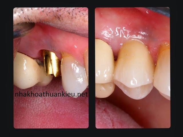 nha khoa|nha khoa thuan kieu|nha khoa tphcm|dental|dental implant|implant|nha khoa uy tin