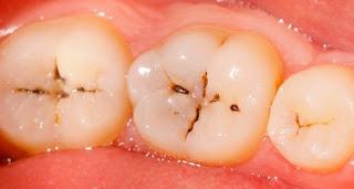 la carie dentaire est elle contagieuse