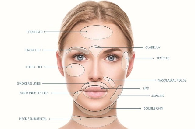 information about novathreads facelift wrinkle reduction