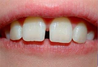Điều trị răng thưa hiệu quả