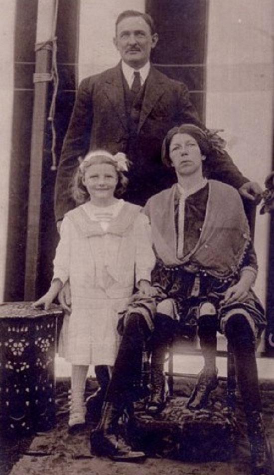 Mulher com 4 pernas existiu de verdade - Josephene Myrtle Corbin - Img 2