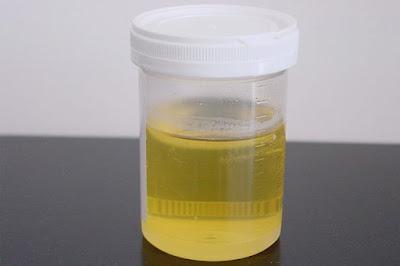 Urine mousseuse: Voici pourquoi vous avez des bulles dans votre urine