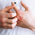 5 Langkah Berkesan Melawan Penyakit Kulit Psoriasis