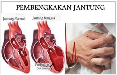 cara mengobati penyakit jantung bengkak