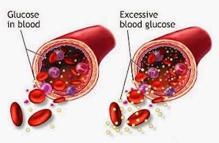 Bagaimana Gula Dapat Menyebabkan diabetes