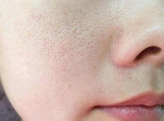 Cara Mengecilkan Pori pori di Wajah Secara Alami