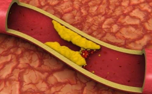 Çka janë trigliceridet?, Trigliceridet, Yndyrnat ne gjak, Mëlçia
