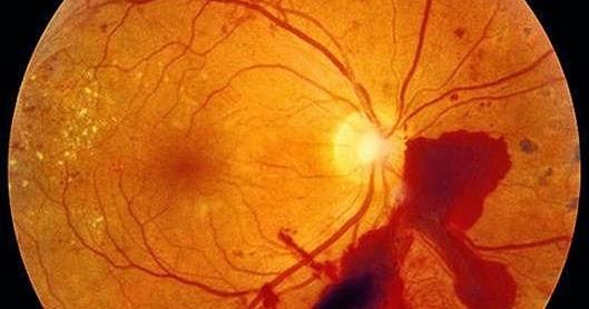 Зрение Журнал: Отслойка сетчатки глаза после операции. Стоимость ...