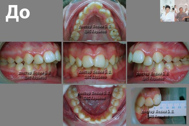 Пять фото разных проекций пациента с прогнатическим прикусом