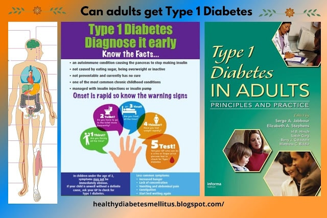 Can adults get type 1 diabetes