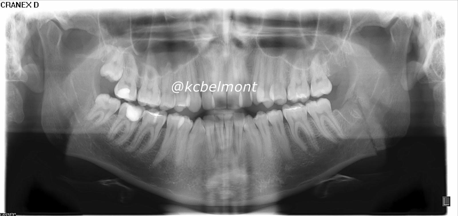 Fratura por exodontia do 3 molar inferior inpactado 5