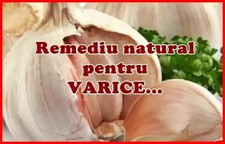 pareri forum remediu varice prfounde cu usturoi si ulei de masline