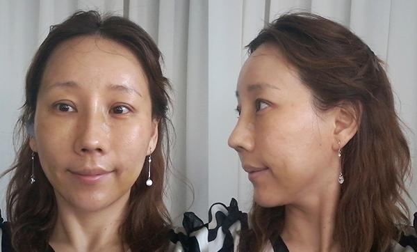 짱이뻐! - Face Lift Surgery, A Drastic Turning Point In My Life