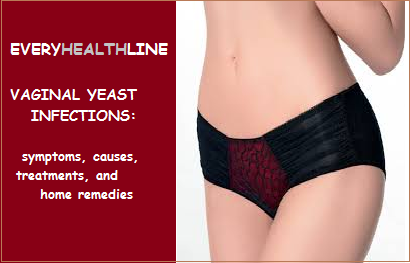 everyhealthline: vaginal yeast infection: symptoms, causes, Skeleton