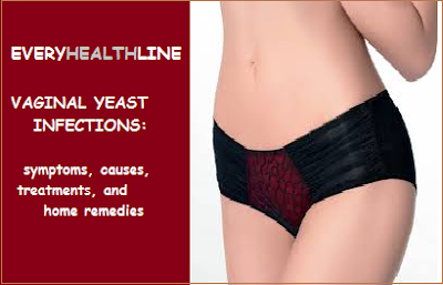 vaginal-yeast-infection-symptoms-causes-treatment-prevention