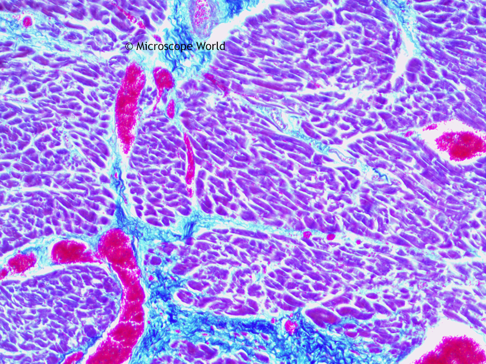 microscope world blog: human cardiac muscle under the microscope, Muscles