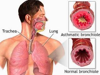 Penyakit Paru Paru Asma