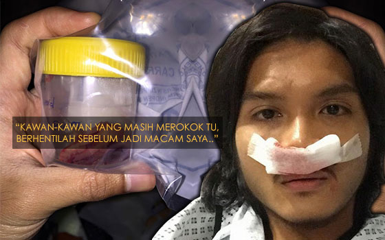 Lelaki Ini Kongsi Kisah Hidungnya Terpaksa Dibedah Walau Sudah 5 Tahun Berhenti Merokok