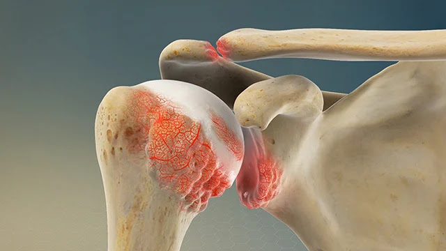 Penyebab dan Cara Mengatasi Sakit Pundak Secara Efektif