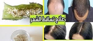 وصفات لمعالجه الشعر والعناية به وأسباب تساقط الشعر
