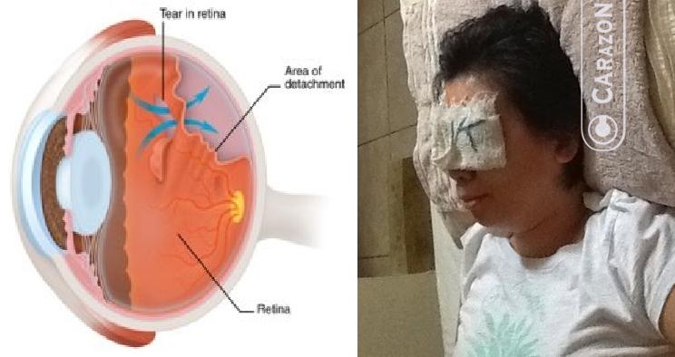 Manfaat Pakai Kacamata