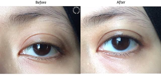 review hasil pemakaian eye serum retinol elsheskin