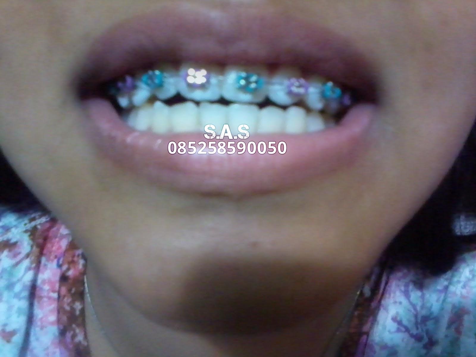 Dari yang Kurang Rapi Menjadi Lebih Rapi Tukang Gigi