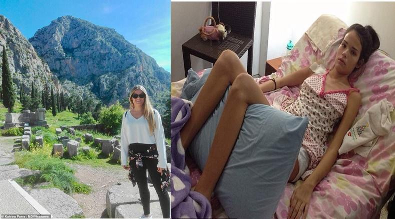 Instrutora de fitness, 26 anos, fica paralisada por conta do medicamento anticoncepcional YAZ
