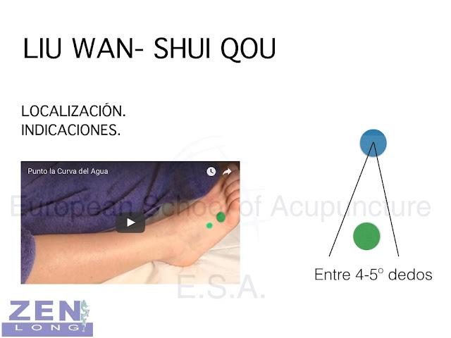 Tratar la migraña con acupuntura