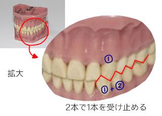 歯科矯正のイメージ画像 歯並び