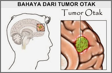 http://obattumorotak97.blogspot.com/